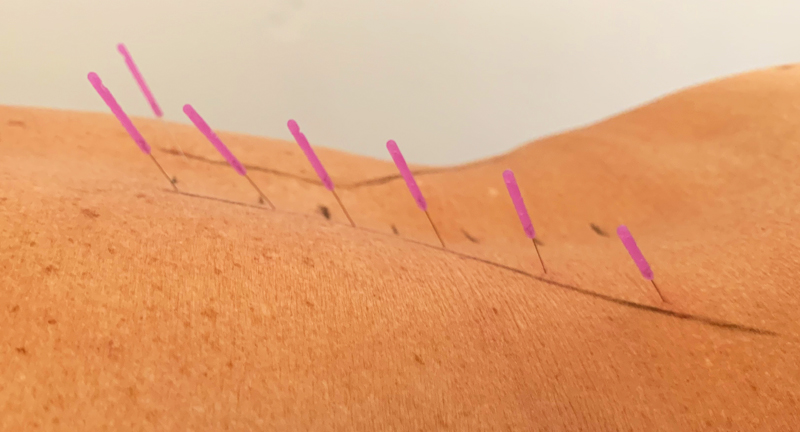 Klachtbehandeling Dry Needling